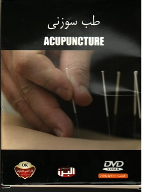 طب سوزنی(Acupuncture)